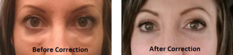 Before & After of Under Eye Fillers Injection at Advanced Hair and Skin Surgery